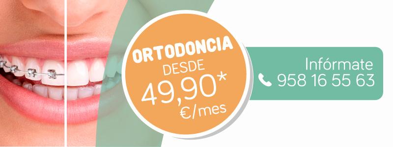 Oferta implantes Granada